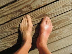 Feet Gout Pain Foot Human Anomaly  - cnick / Pixabay
