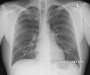 Diagnosis Xray Chest Lungs Ribs  - oracast / Pixabay
